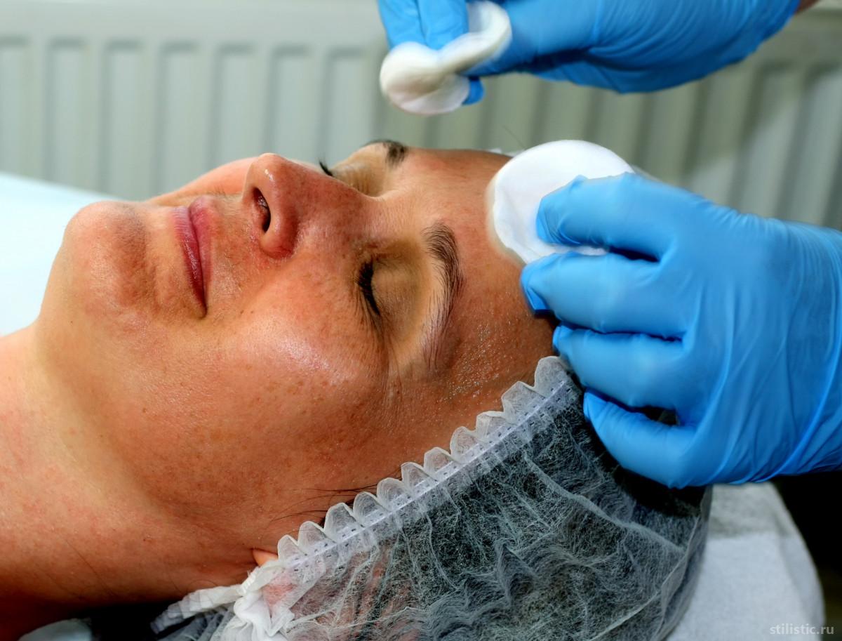 ELOS-терапия: безопасный и эффективный способ омолодиться