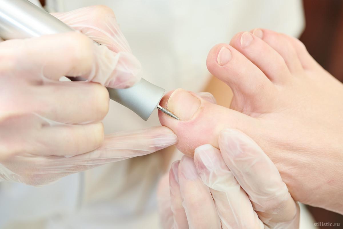 Красота и здоровье ногтей: зачем обращаться к подологу?